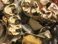 Schätze im Mund: So lohnt sich der Verkauf von Zahngold