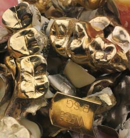 Bild von Schätze im Mund: So lohnt sich der Verkauf von Zahngold