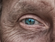 Altersbedingte Makuladegeneration – Was tun?