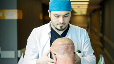 2021-02-23-Haartransplantation