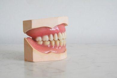 Schlechte Zähne sind ein Einfallstor für Bakterien, deren Abbauarbeiten einen schlechten Mundgeruch hervorrufen.
